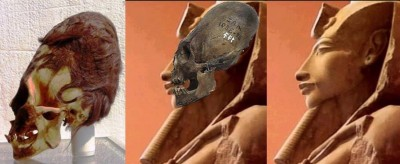cranio+ Amenotep 1